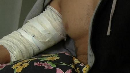 Jovem baleado durante ação policial em baile funk de Vila Velha diz que vai processar o Estado
