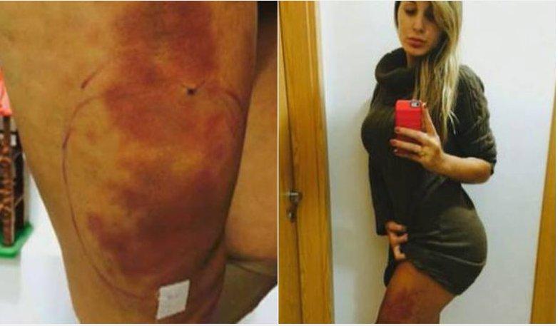 Acrílico e hidrogel injetados no corpo de Andressa Urach podem ...