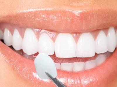 00d388ff93266 Lente de contato dental é a nova moda para quem busca um sorriso ...