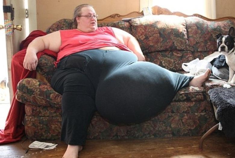 Mulher obesa remove estômago que desceu para as pernas | Folha ...