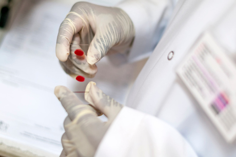 Patentes impedem redução de preços de tratamento da aids, diz ...