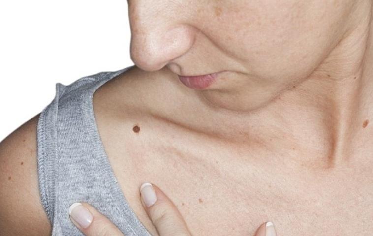 Retiramos lugares de pigmentary em uma cara na gravidez