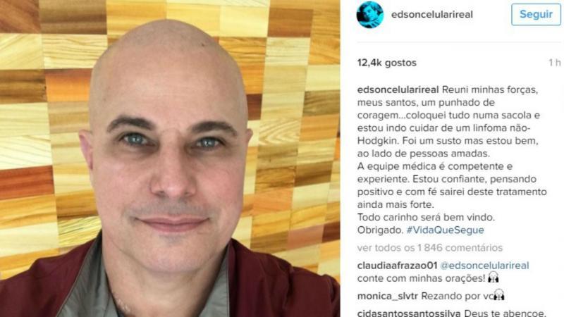 Edson Celulari publica foto careca após ser diagnosticado com câncer