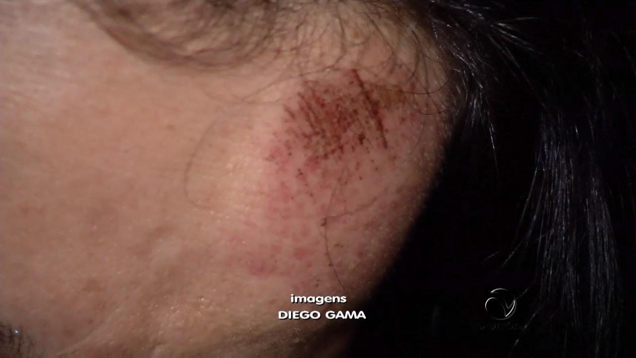 Mulher é espancada pelo marido após festa em Vitória | Folha Vitória