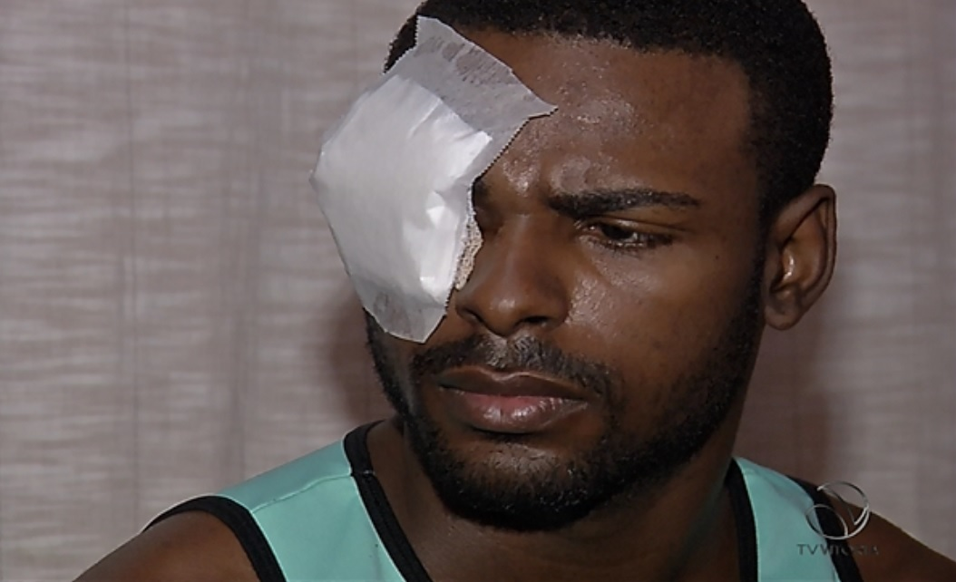 Universitário baleado em Vila Velha fica cego do olho direito