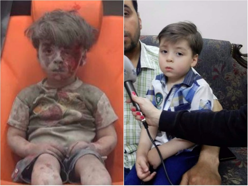 Menino sírio, cuja foto chocou o mundo, agora parece saudável e feliz
